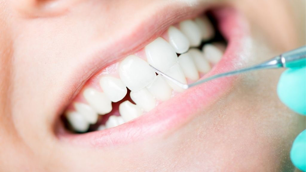 dental-cleaning-solon