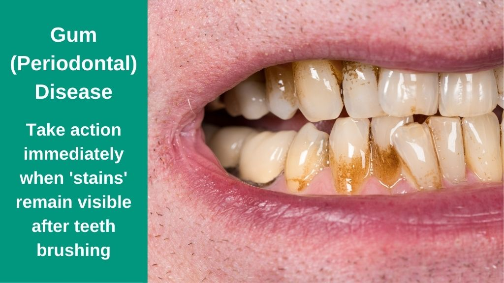 Periodontal Gum Disease treatment in Cleveland OH