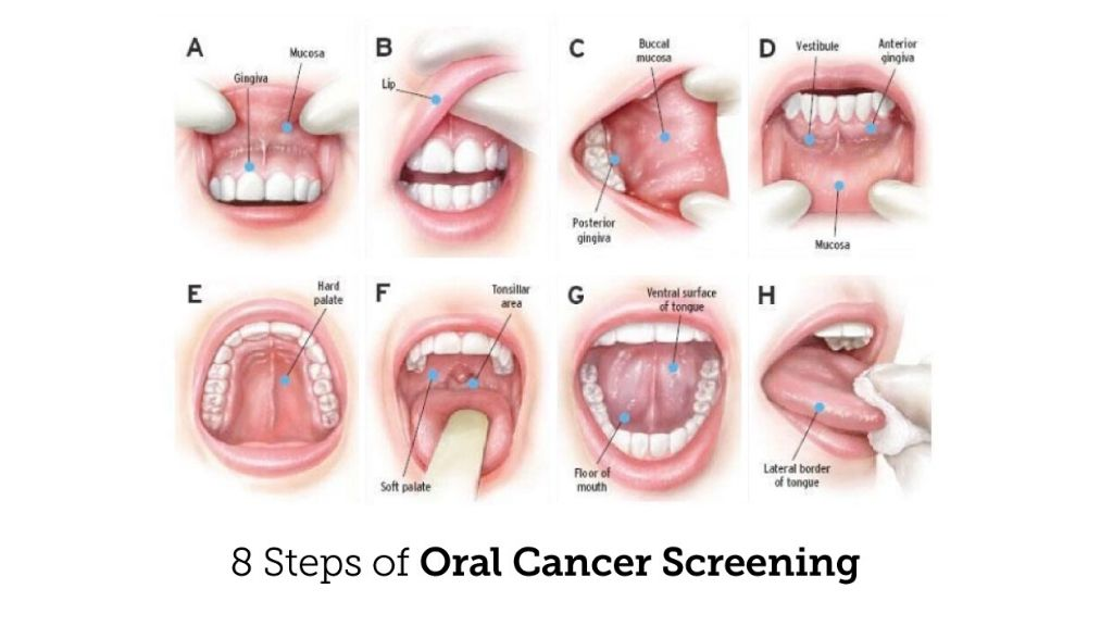 oral-cancer-check-up-cleveland