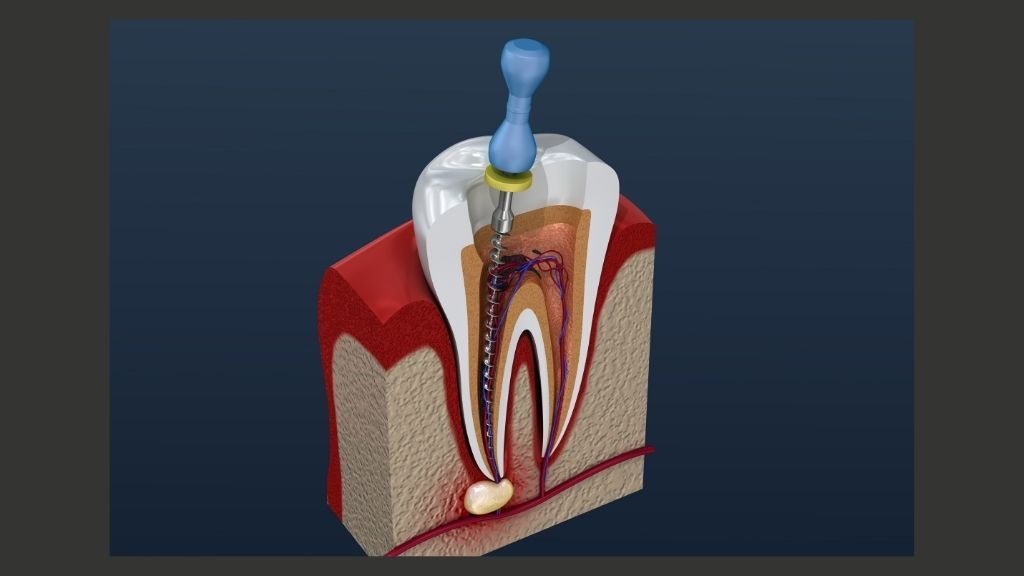 root-canals-cleveland-solon